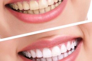 Cosmetic Dentistry | Mattingly Family Dentistry | Lowell, IN